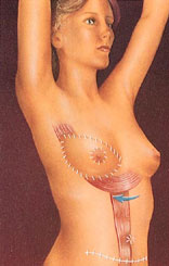 Breast reconstruction 7