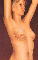 Breast reconstruction 8