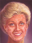 Chemical peel 3