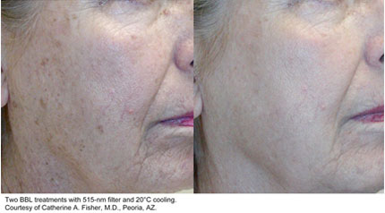 Laser resurfacing Sciton 1