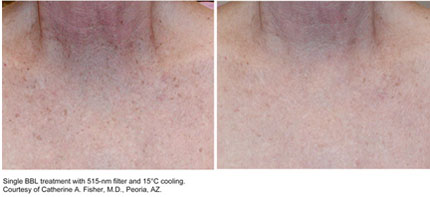 Laser resurfacing Sciton 2