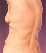 Liposuction 3