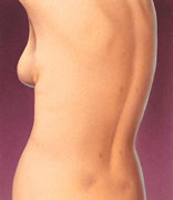 Liposuction 7