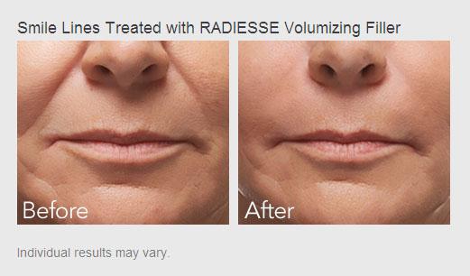 Radiesse Injections Bryan Texas - Radiesse Treatments