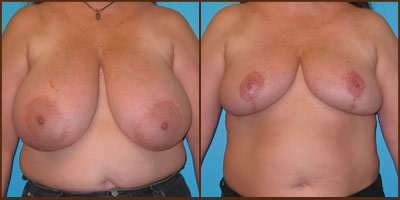 View more Breast Reduction before and after photos