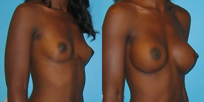 View more Breast Augmentation before and after photos